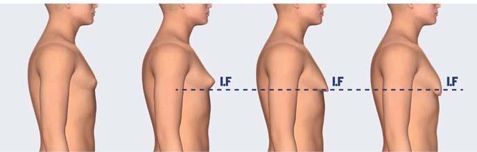 عامل بزرگ شدن سینه در اقایان